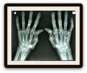 Herbal remedies for arthritis