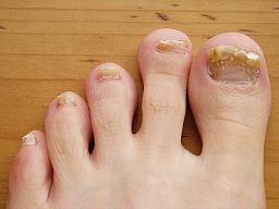 Nail fungus remedies